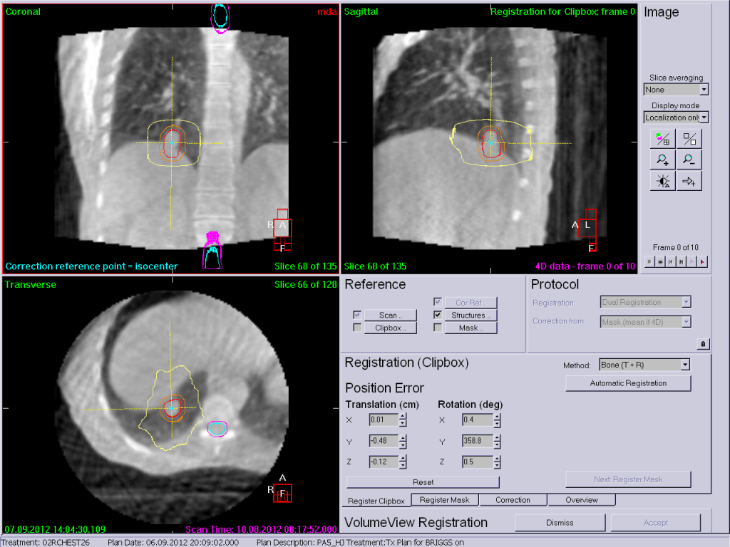 A CT scan taken during radiation treatment is used to ensure the SBRT treatment to a lung cancer lines up exactly to the same point every day and remains that way throughout treatment delivery.